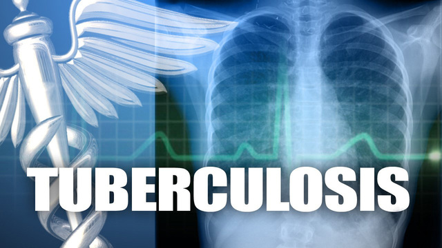 Tuberculosis case reported at the Syracuse City School District