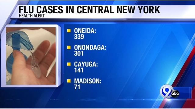 Onondaga County sees over 300 cases of the flu in a week